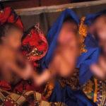 Mme MANIRIYO - 19 ans - donne naissance à des triplés à KIRUNDO / BURUNDI