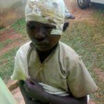 BURUNDI : Une méchante dame brûle à l'eau chaude un jeune gardien de VACHE / MATANA